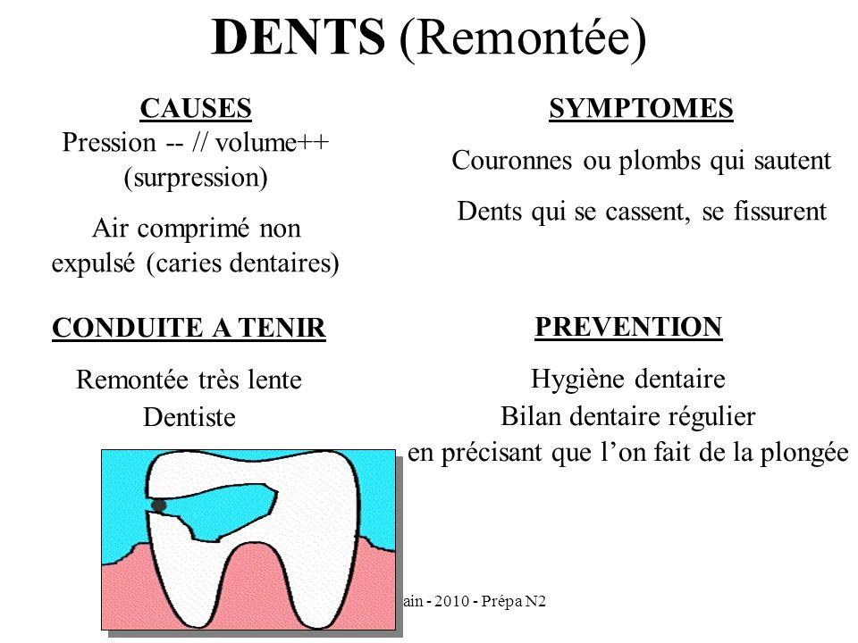 DENTS (Remontée) CAUSES Pression -- // volume++ (surpression)