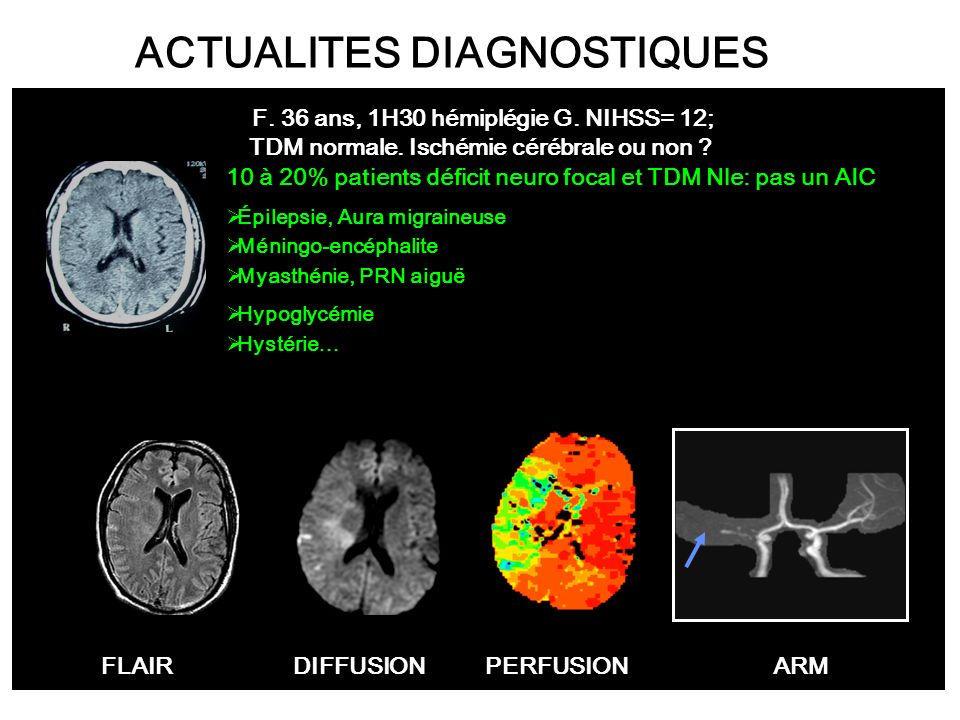 ACTUALITES DIAGNOSTIQUES