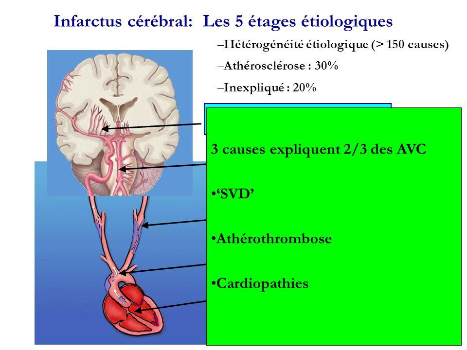 Infarctus cérébral: Les 5 étages étiologiques