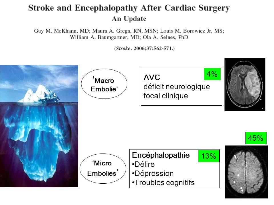 'Macro 4% AVC déficit neurologique focal clinique 45% Encéphalopathie