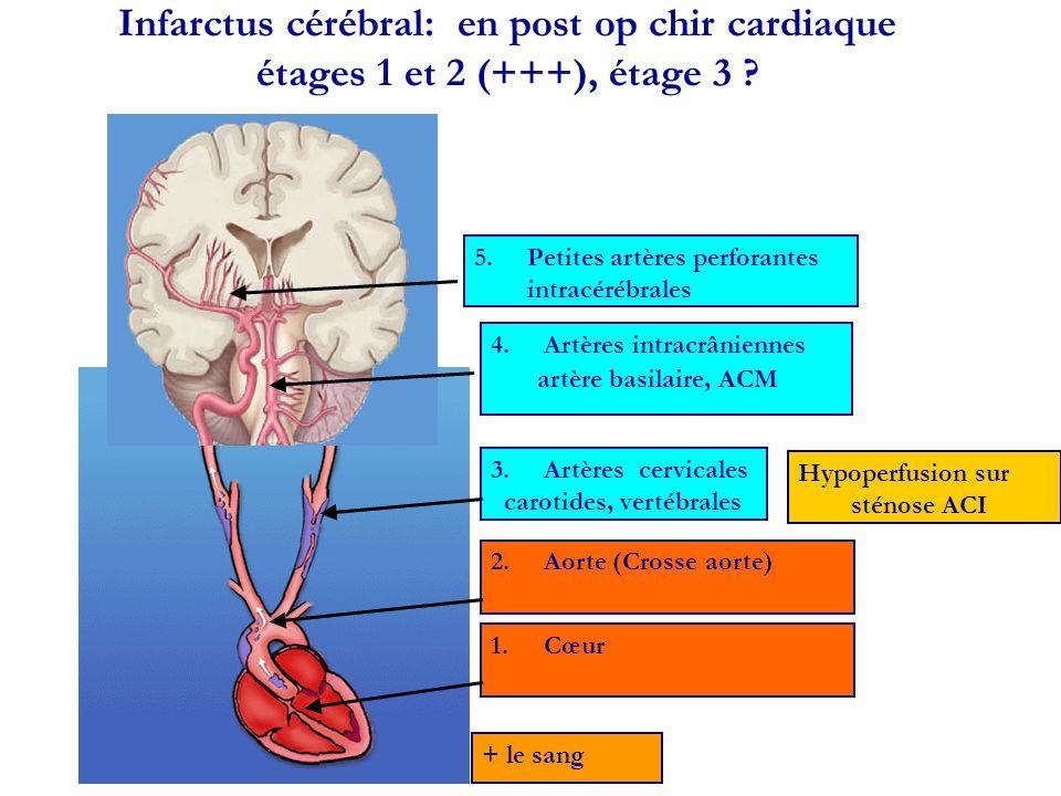 Infarctus cérébral: en post op chir cardiaque étages 1 et 2 (+++), étage 3