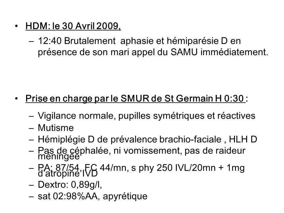HDM: le 30 Avril 2009, 12:40 Brutalement aphasie et hémiparésie D en présence de son mari appel du SAMU immédiatement.