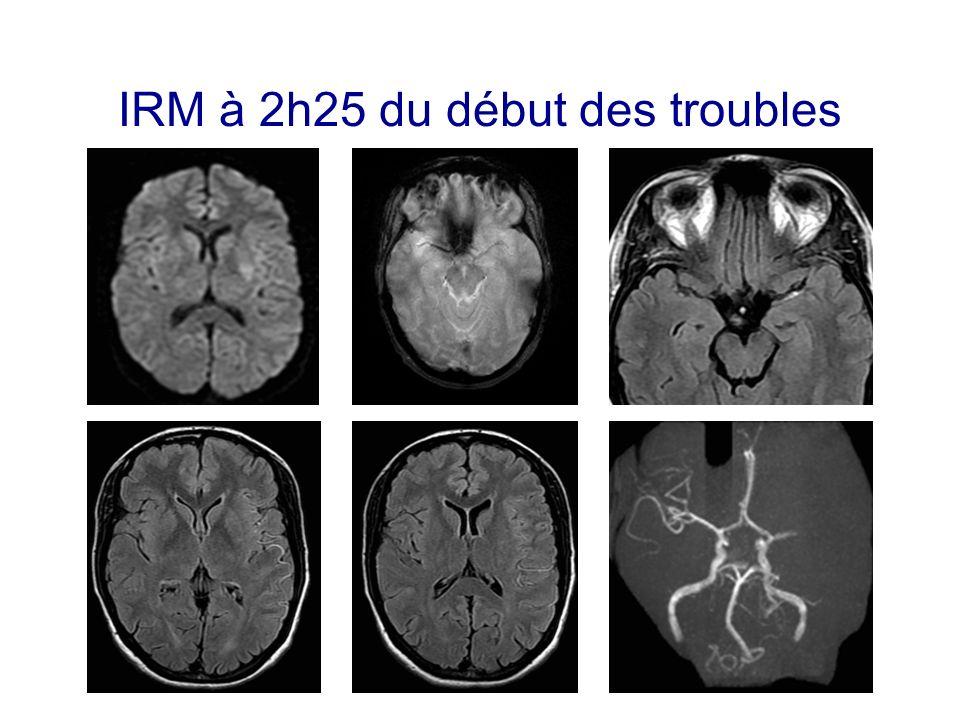 IRM à 2h25 du début des troubles