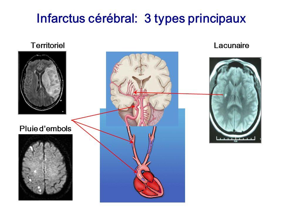 Infarctus cérébral: 3 types principaux