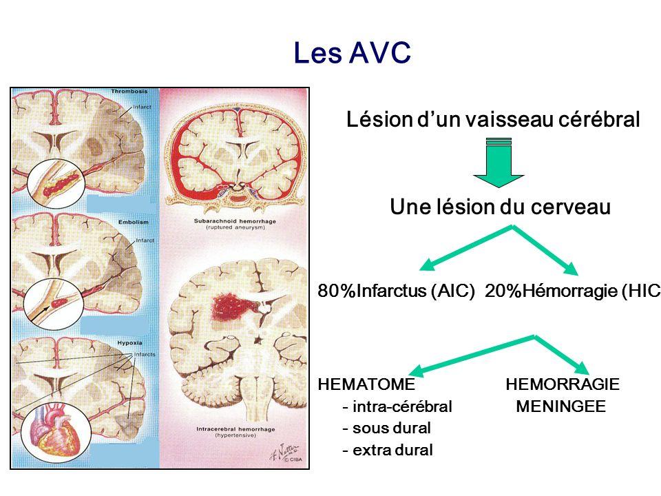 Lésion d'un vaisseau cérébral