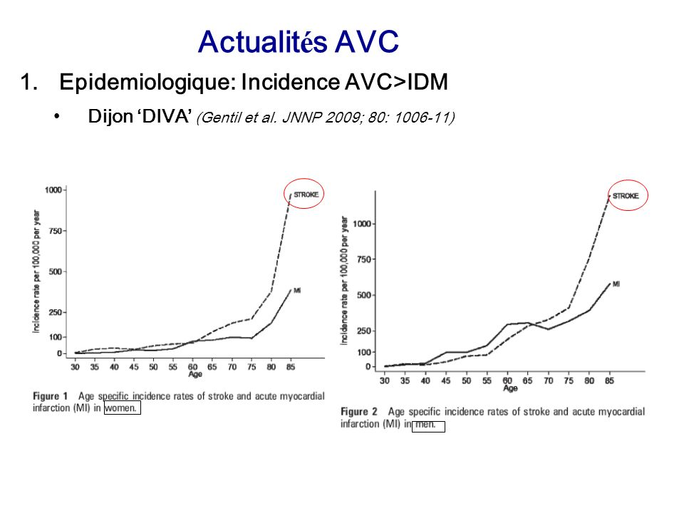 Actualités AVC Epidemiologique: Incidence AVC>IDM