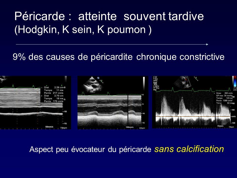 Péricarde : atteinte souvent tardive (Hodgkin, K sein, K poumon )