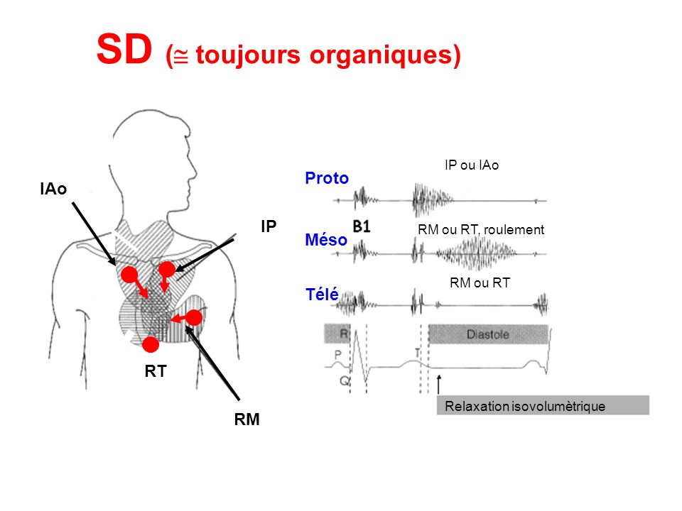 SD ( toujours organiques)