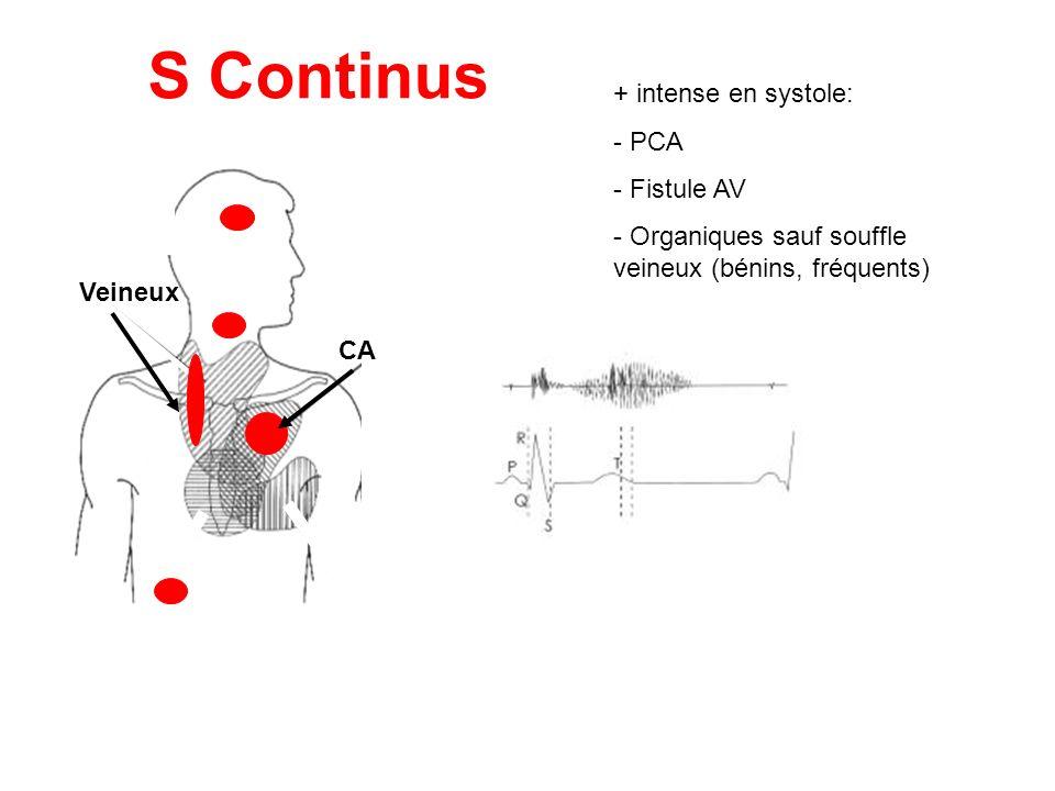 S Continus + intense en systole: - PCA - Fistule AV