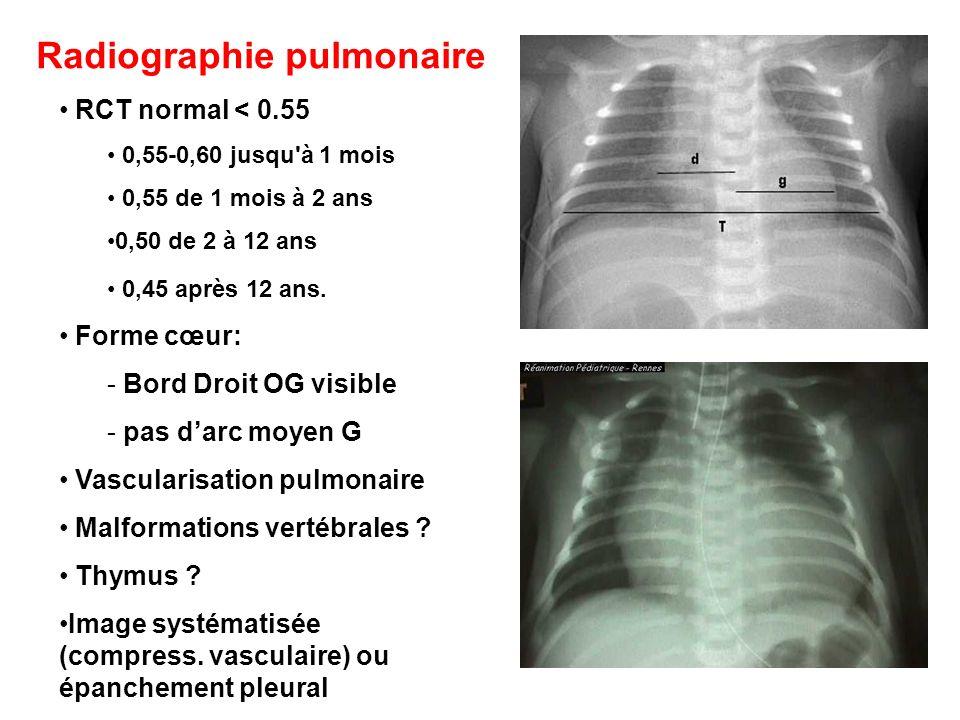 Radiographie pulmonaire
