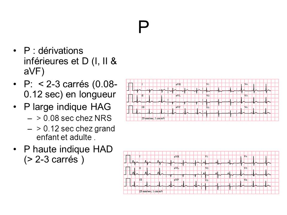 P P : dérivations inférieures et D (I, II & aVF)