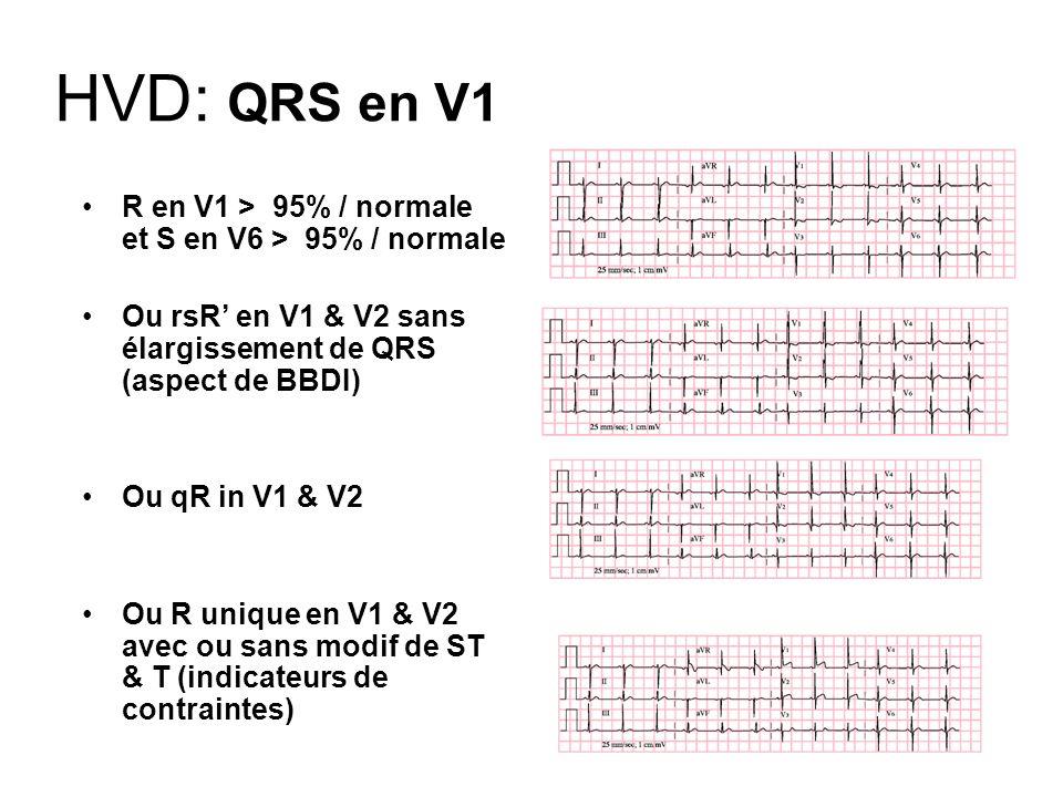 HVD: QRS en V1 R en V1 > 95% / normale et S en V6 > 95% / normale. Ou rsR' en V1 & V2 sans élargissement de QRS (aspect de BBDI)