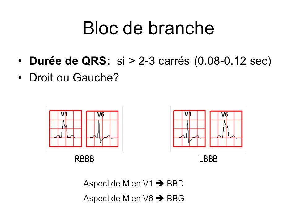 Bloc de branche Durée de QRS: si > 2-3 carrés (0.08-0.12 sec)