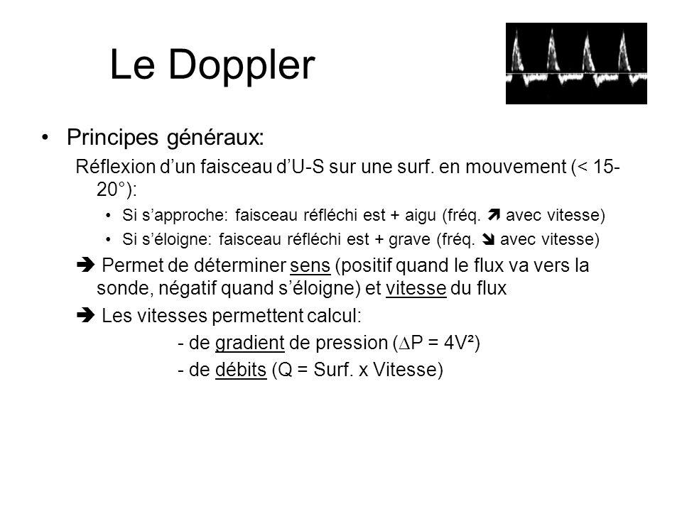 Le Doppler Principes généraux: