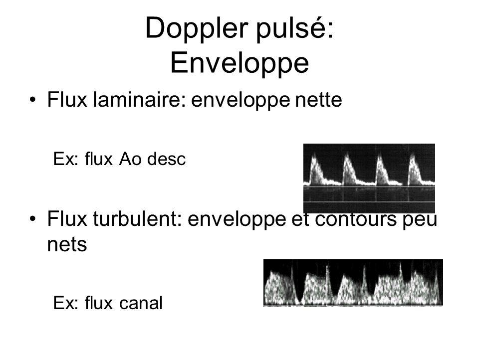 Doppler pulsé: Enveloppe
