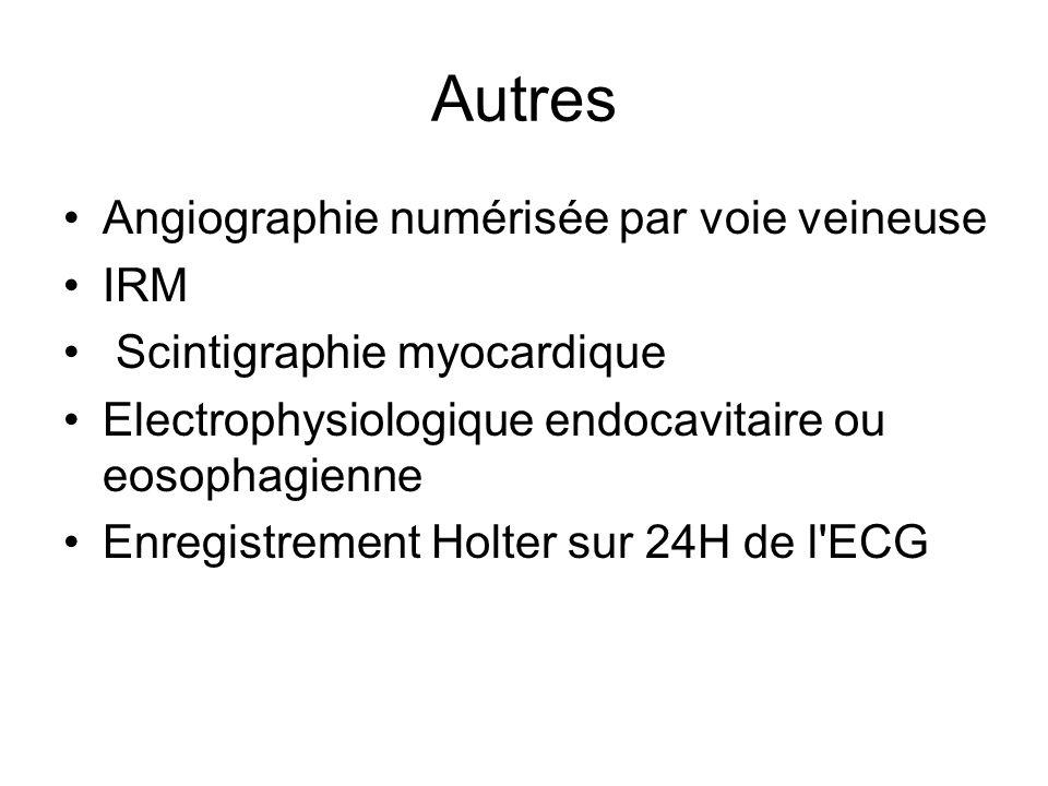 Autres Angiographie numérisée par voie veineuse IRM