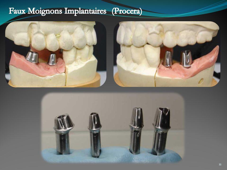 Faux Moignons Implantaires (Procera)