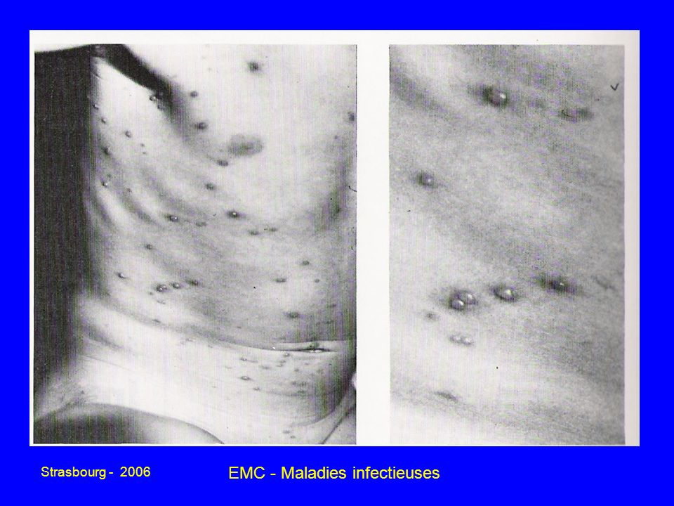EMC - Maladies infectieuses