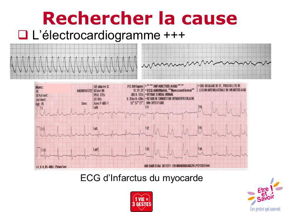 ECG d'Infarctus du myocarde