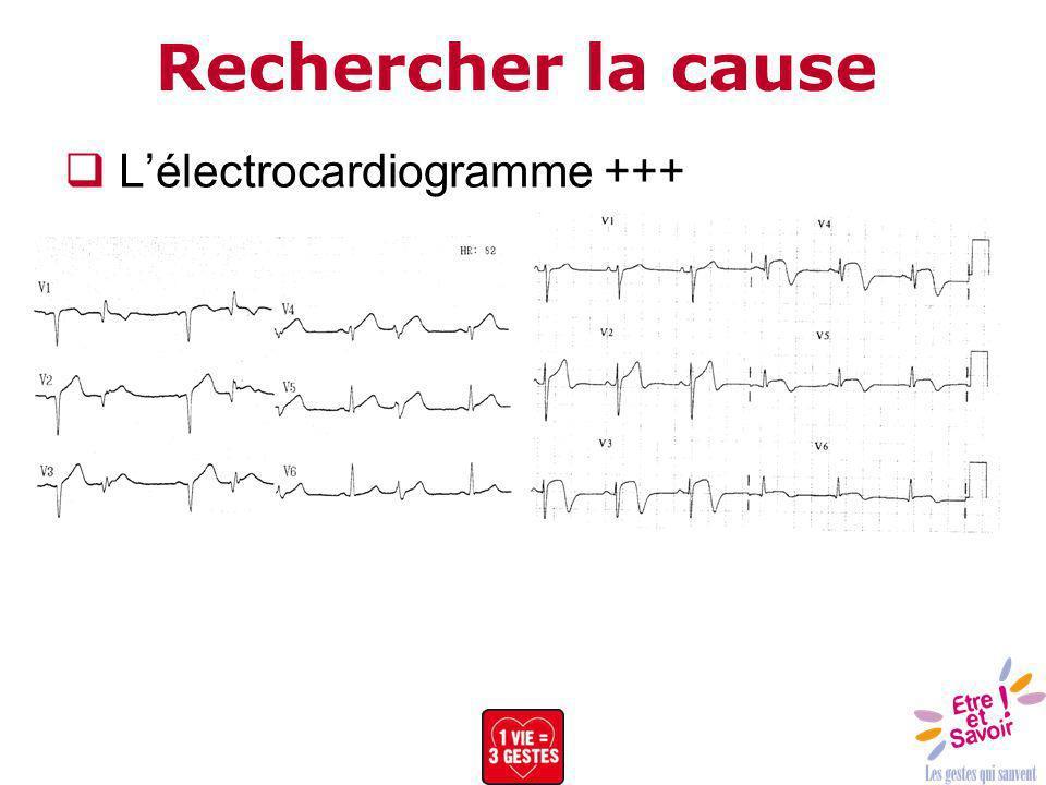 Rechercher la cause L'électrocardiogramme +++