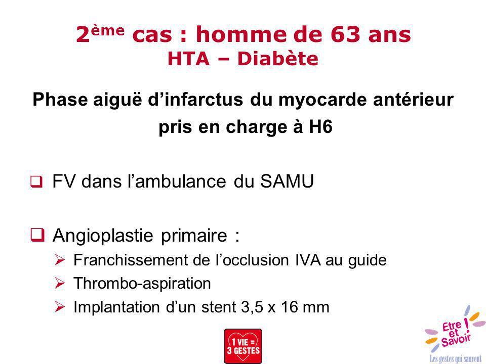 2ème cas : homme de 63 ans HTA – Diabète