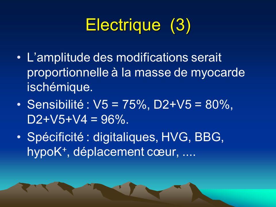 Electrique (3) L'amplitude des modifications serait proportionnelle à la masse de myocarde ischémique.
