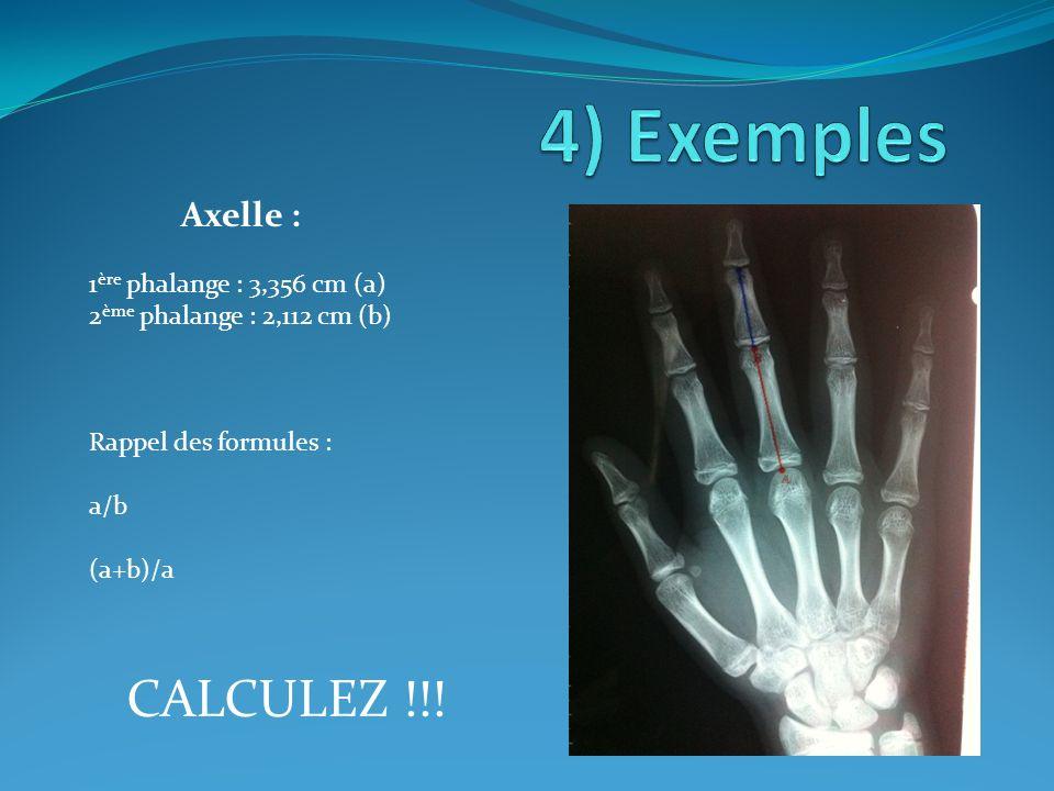 4) Exemples CALCULEZ !!! Axelle : 1ère phalange : 3,356 cm (a)