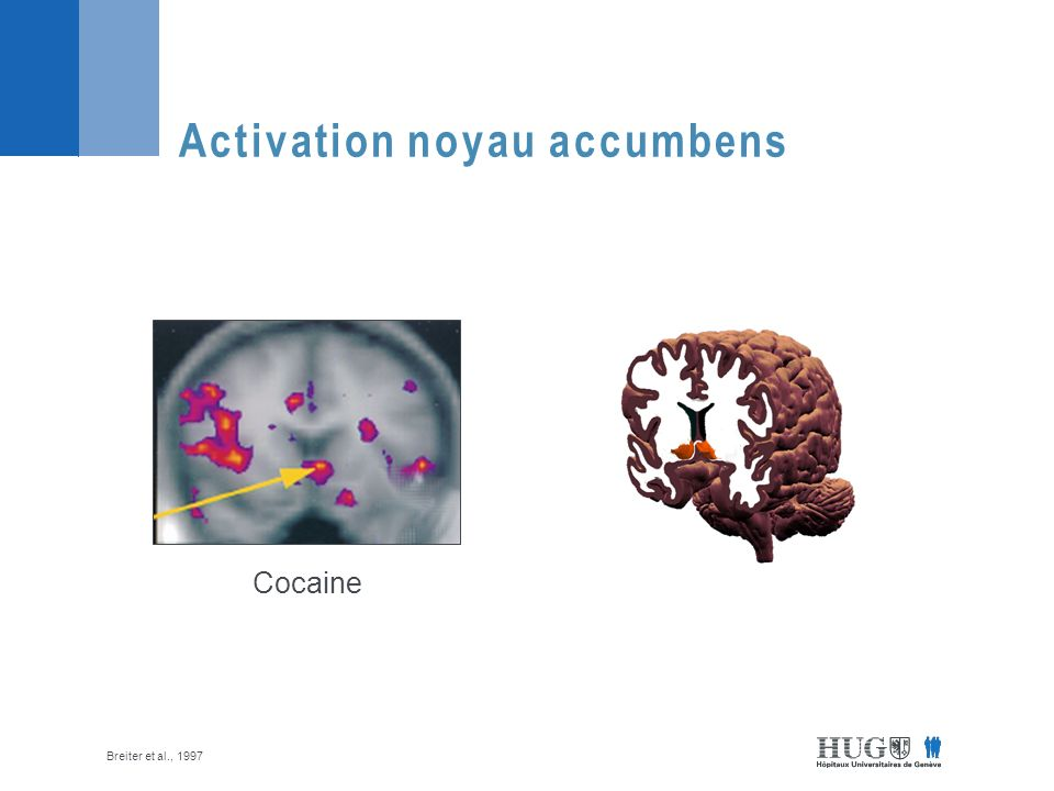 Activation noyau accumbens