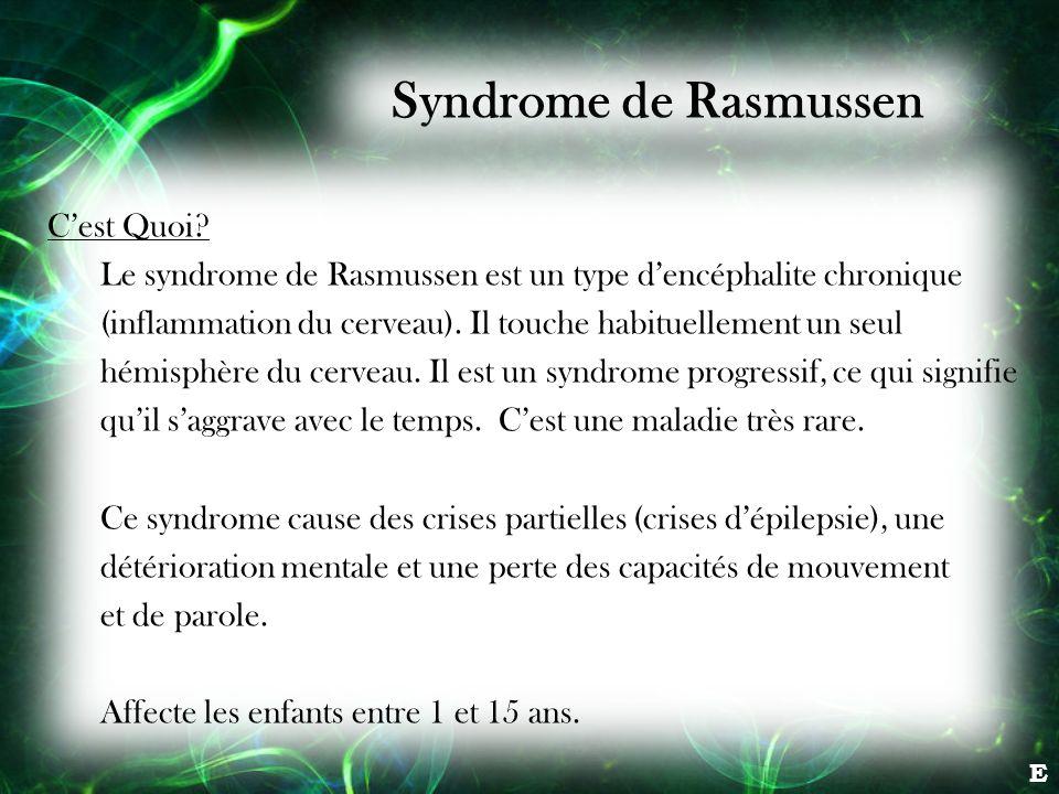 Syndrome de Rasmussen C'est Quoi
