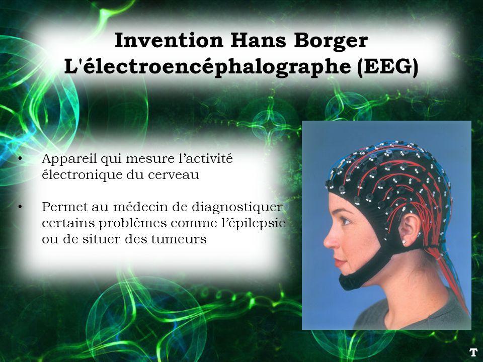 L électroencéphalographe (EEG)
