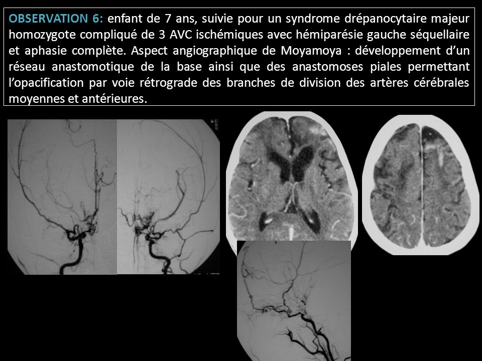 OBSERVATION 6: enfant de 7 ans, suivie pour un syndrome drépanocytaire majeur homozygote compliqué de 3 AVC ischémiques avec hémiparésie gauche séquellaire et aphasie complète.