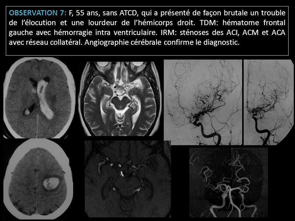 OBSERVATION 7: F, 55 ans, sans ATCD, qui a présenté de façon brutale un trouble de l'élocution et une lourdeur de l'hémicorps droit.