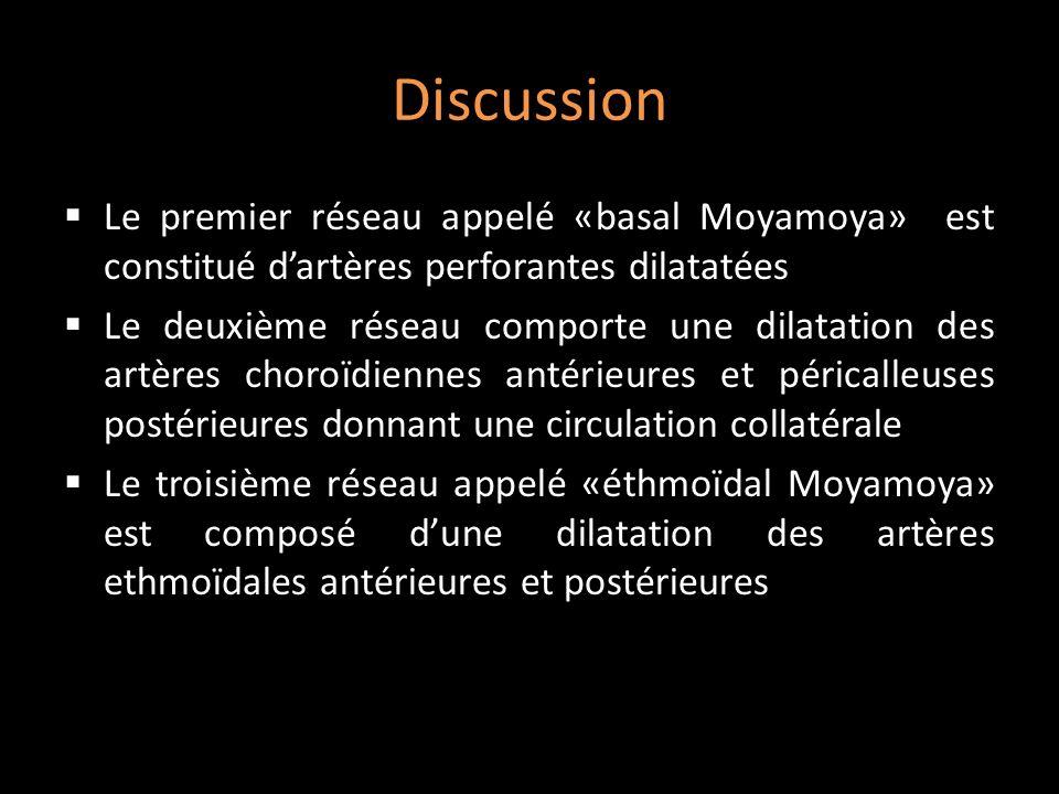Discussion Le premier réseau appelé «basal Moyamoya» est constitué d'artères perforantes dilatatées.