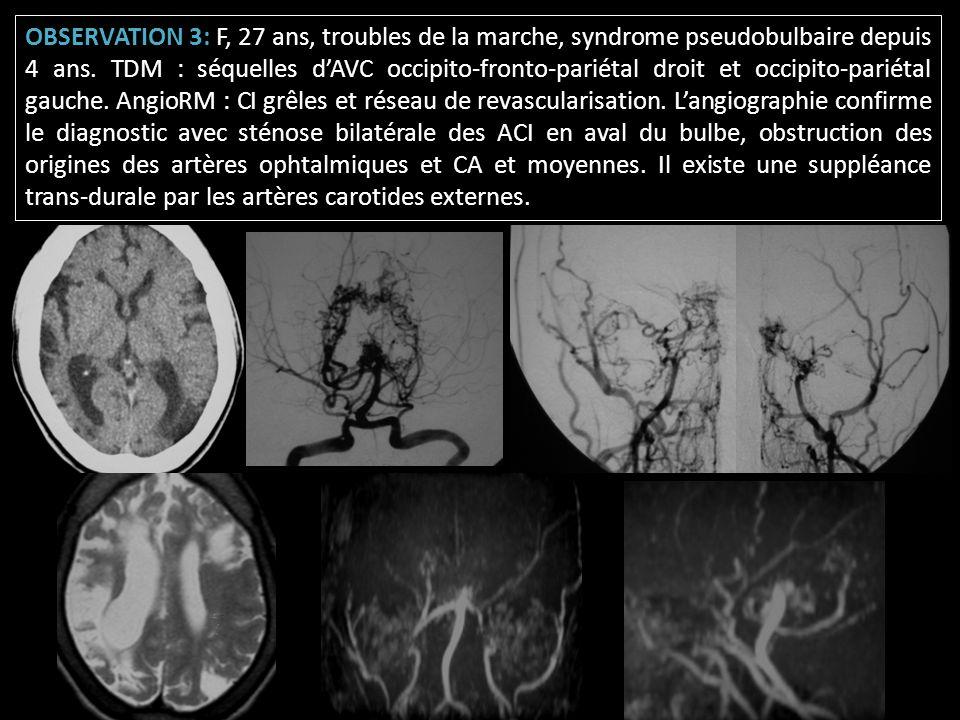 OBSERVATION 3: F, 27 ans, troubles de la marche, syndrome pseudobulbaire depuis 4 ans.