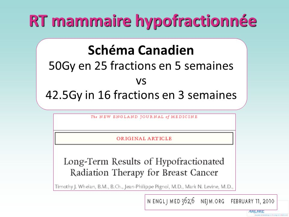 RT mammaire hypofractionnée