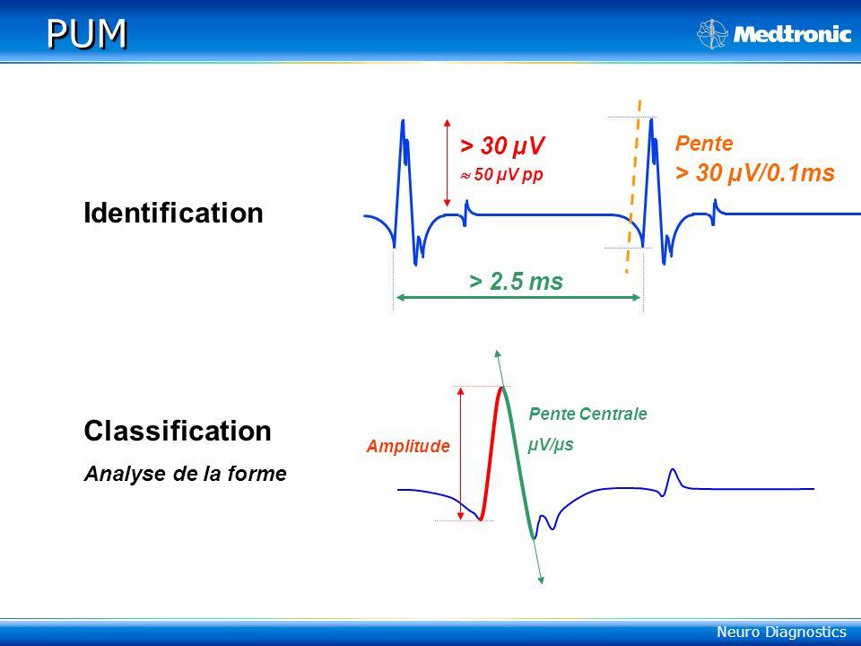 PUM Identification Classification > 30 µV  50 µV pp