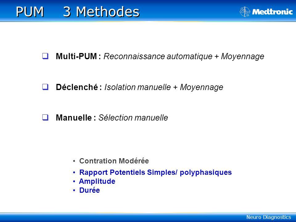 PUM 3 Methodes Multi-PUM : Reconnaissance automatique + Moyennage