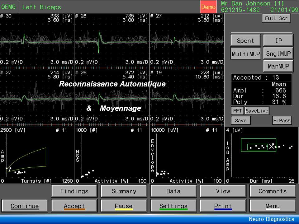 Reconnaissance Automatique