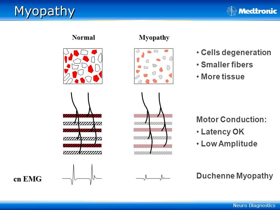 Myopathy Cells degeneration Smaller fibers More tissue