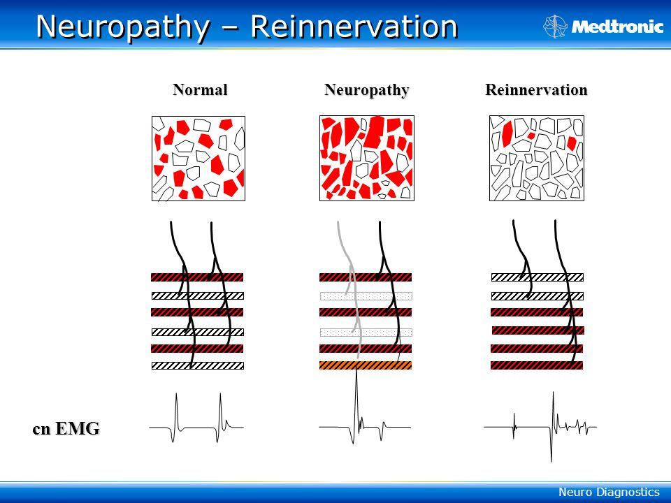 Neuropathy – Reinnervation