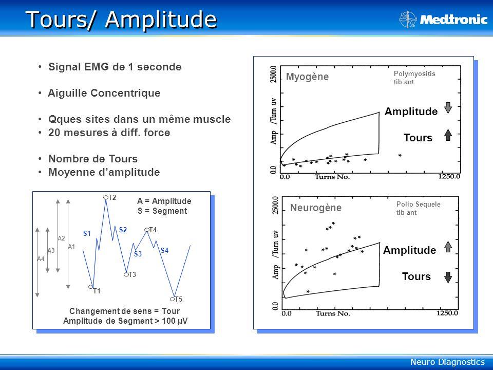 Changement de sens = Tour Amplitude de Segment > 100 µV