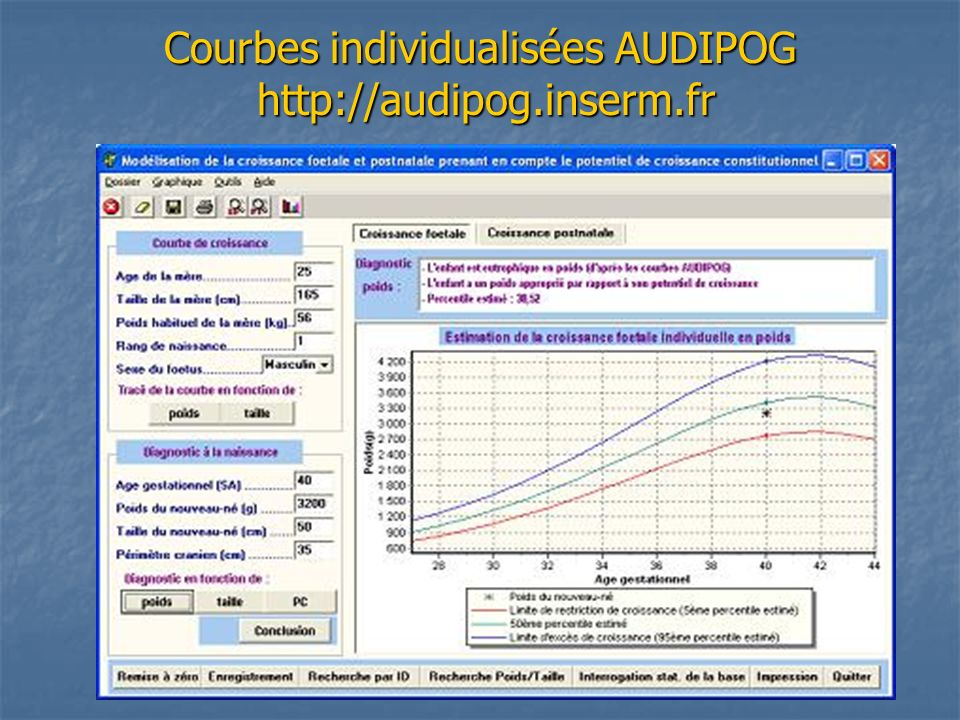 Courbes individualisées AUDIPOG http://audipog.inserm.fr