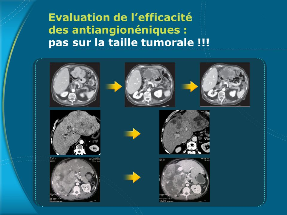 Evaluation de l'efficacité des antiangionéniques : pas sur la taille tumorale !!!
