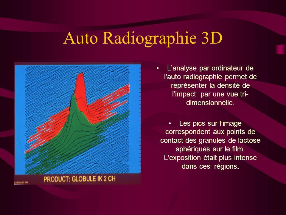 Auto Radiographie 3D L'analyse par ordinateur de l'auto radiographie permet de représenter la densité de l'impact par une vue tri- dimensionnelle.