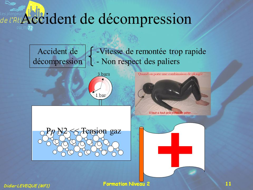 Accident de décompression