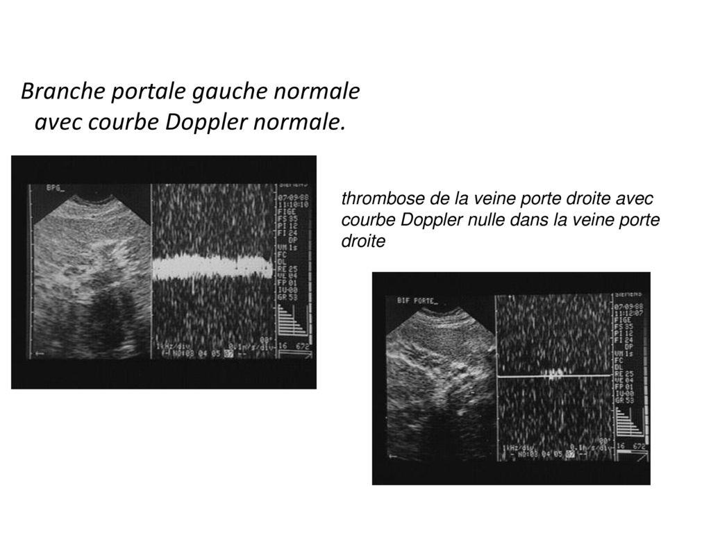 Explorations complementaires dans la pathologie h patique et biliaire ppt t l charger - Thrombose de la veine porte ...