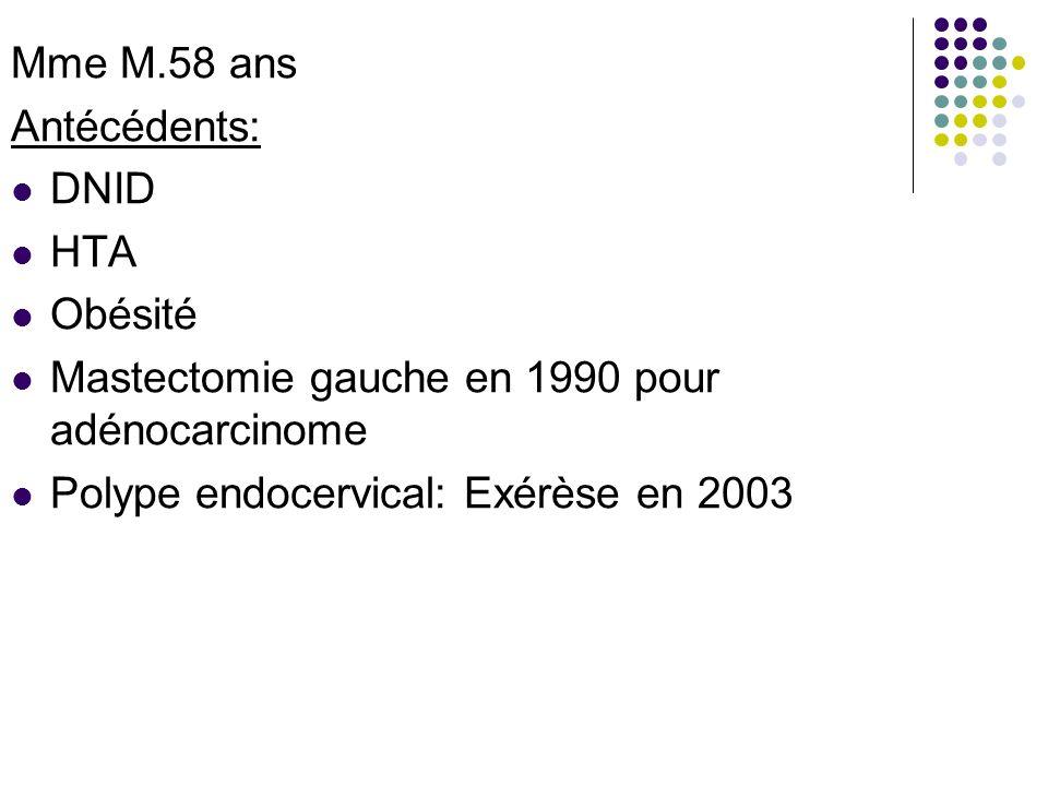 Mme M.58 ans Antécédents: DNID. HTA. Obésité.