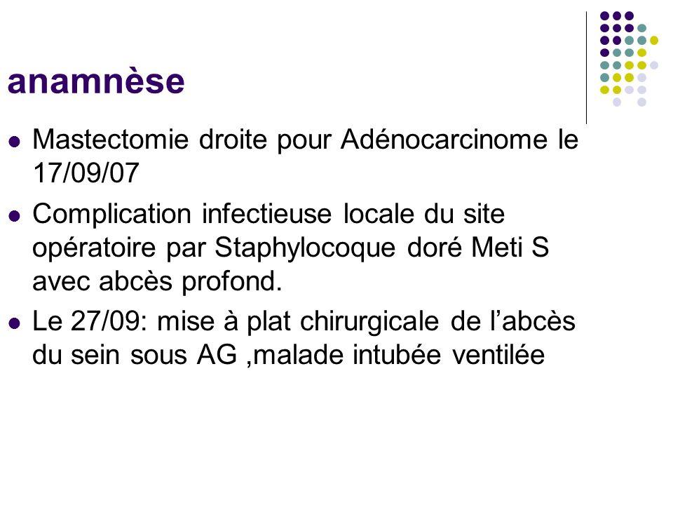 anamnèse Mastectomie droite pour Adénocarcinome le 17/09/07