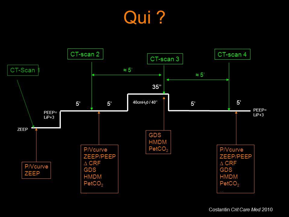Qui CT-scan 2 CT-scan 4 CT-scan 3 CT-Scan 1 ≈ 5' ≈ 5' 35'' 5' 5' 5'