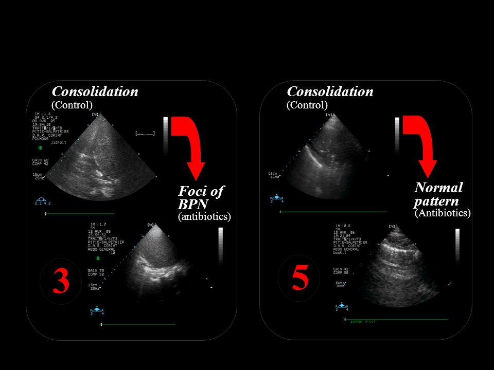 5 3 Ultrasound score is calculated for 12 compartments Consolidation